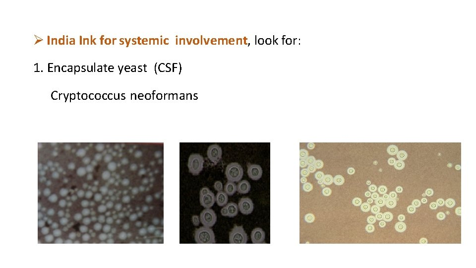India Ink for systemic involvement, look for: 1. Encapsulate yeast (CSF) Cryptococcus neoformans