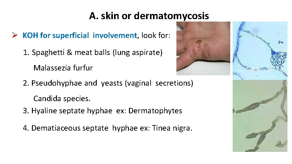 A. skin or dermatomycosis KOH for superficial involvement, look for: 1. Spaghetti & meat