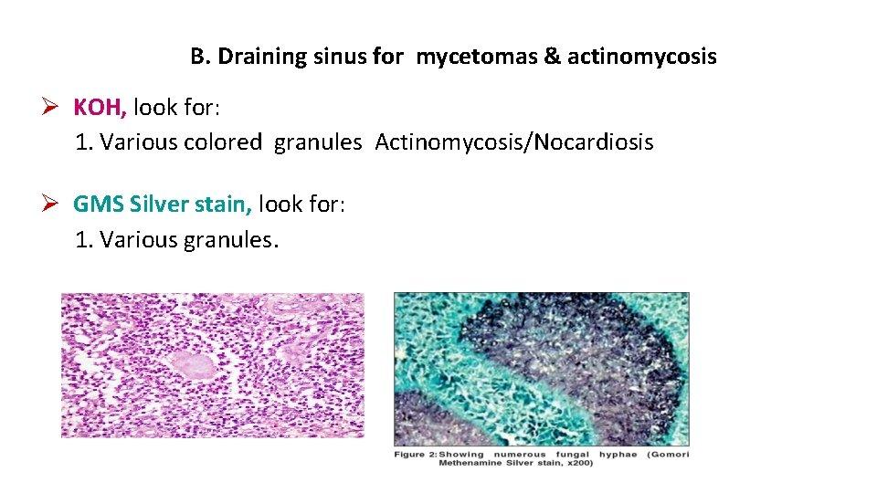 B. Draining sinus for mycetomas & actinomycosis KOH, look for: 1. Various colored granules