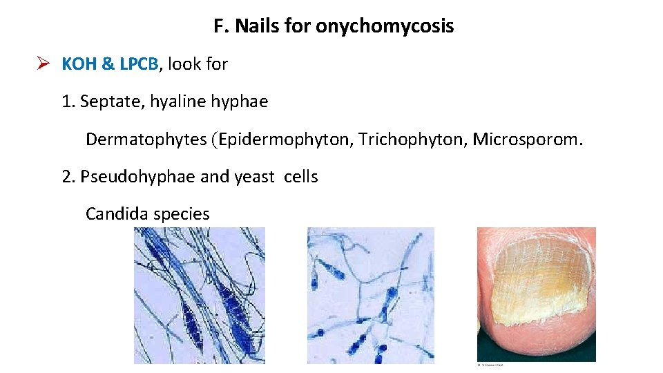 F. Nails for onychomycosis KOH & LPCB, look for 1. Septate, hyaline hyphae Dermatophytes