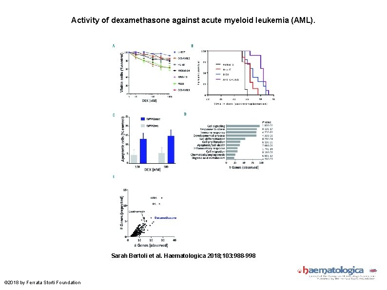 Activity of dexamethasone against acute myeloid leukemia (AML). Sarah Bertoli et al. Haematologica 2018;
