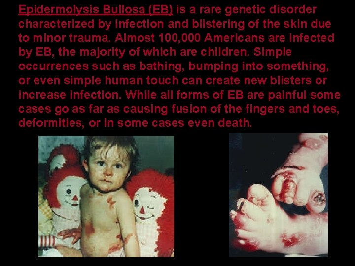 Epidermolysis Bullosa (EB) is a rare genetic disorder characterized by infection and blistering of