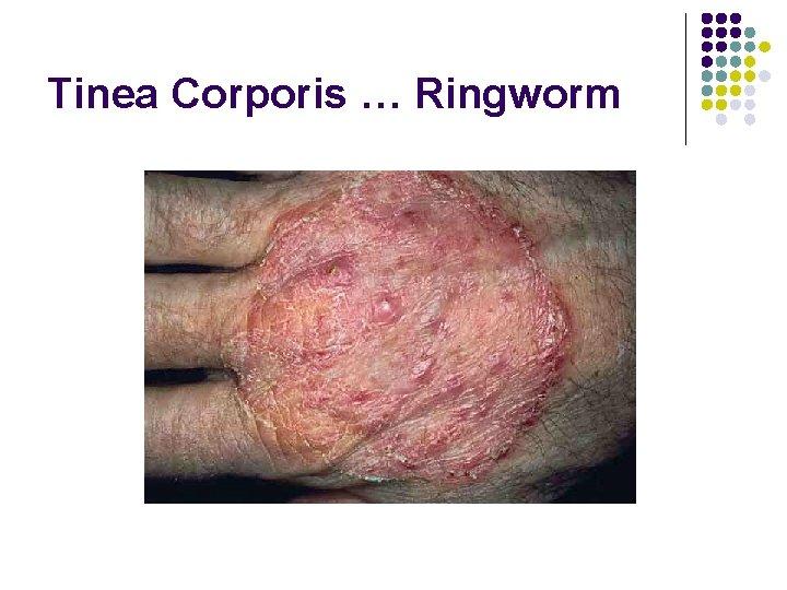 Tinea Corporis … Ringworm
