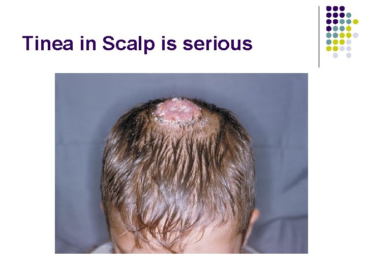 Tinea in Scalp is serious
