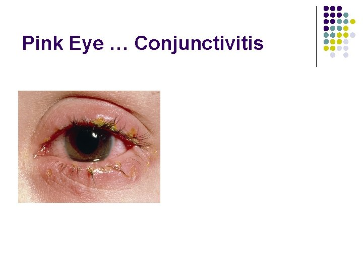 Pink Eye … Conjunctivitis