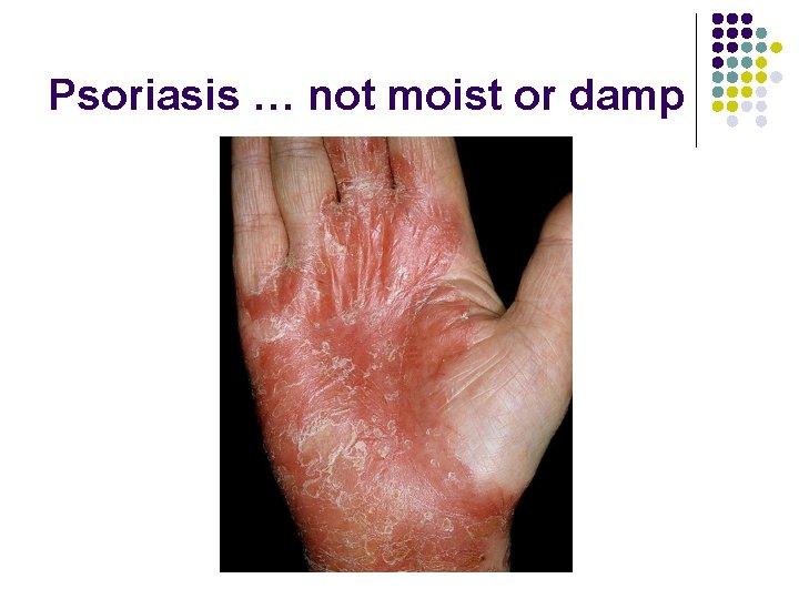 Psoriasis … not moist or damp