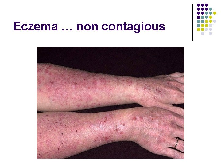 Eczema … non contagious