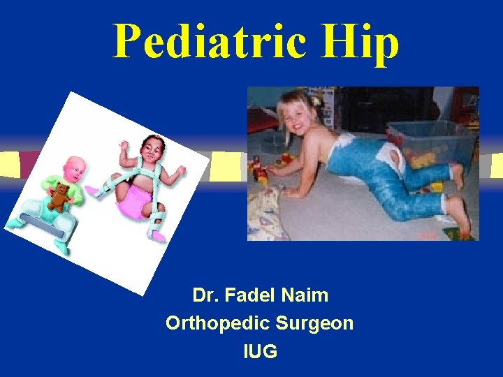Pediatric Hip Dr. Fadel Naim Orthopedic Surgeon IUG