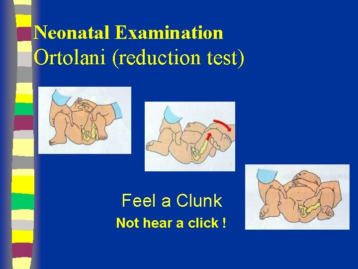 Neonatal Examination Ortolani (reduction test) Feel a Clunk Not hear a click !
