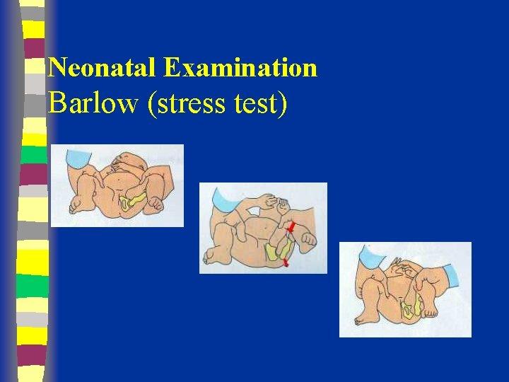 Neonatal Examination Barlow (stress test)