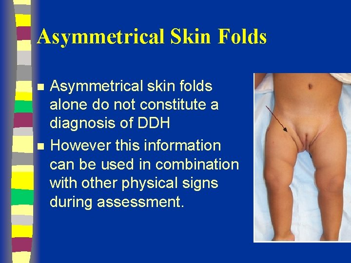 Asymmetrical Skin Folds n n Asymmetrical skin folds alone do not constitute a diagnosis