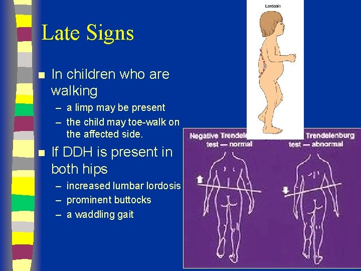 Late Signs n In children who are walking – a limp may be present