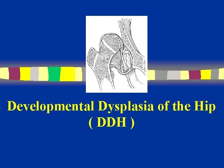 Developmental Dysplasia of the Hip ( DDH )