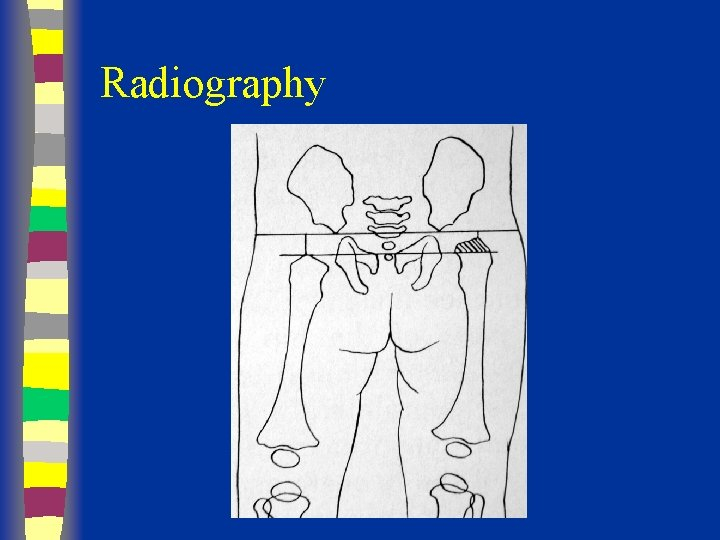 Radiography in out