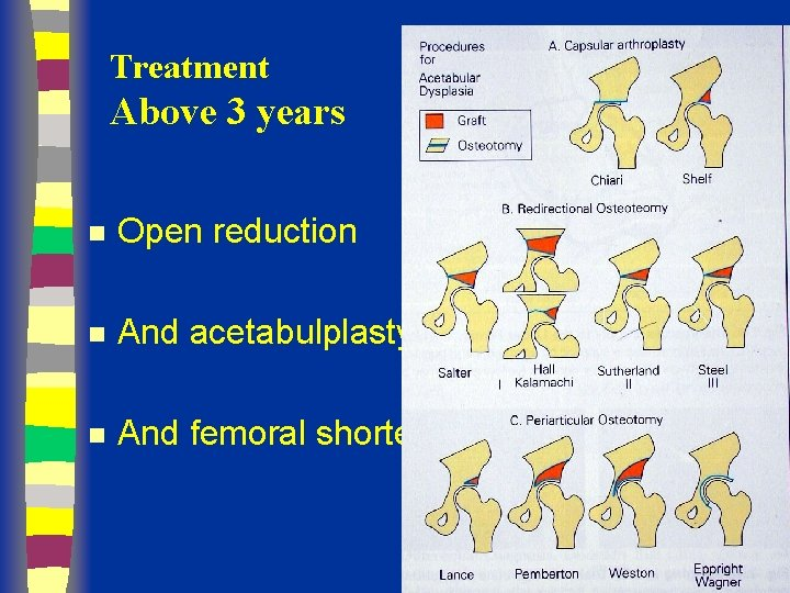 Treatment Above 3 years n Open reduction n And acetabulplasty n And femoral shortening
