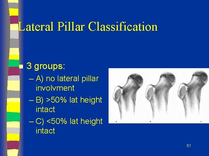 Lateral Pillar Classification n 3 groups: – A) no lateral pillar involvment – B)