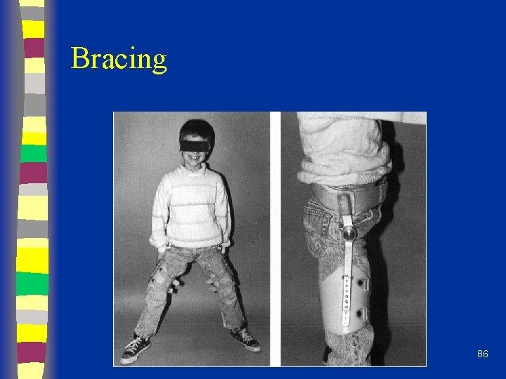Bracing 86