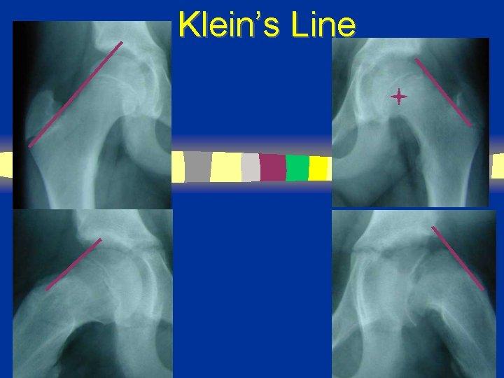 Klein's Line