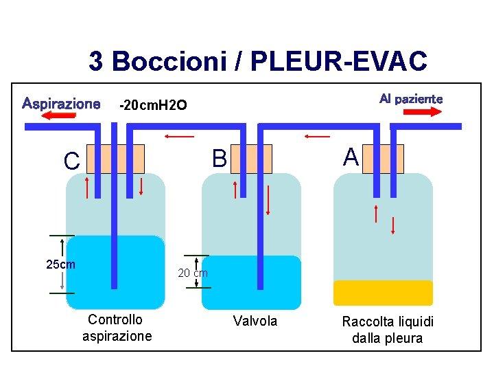 3 Boccioni / PLEUR-EVAC Aspirazione Al paziente -20 cm. H 2 O A B