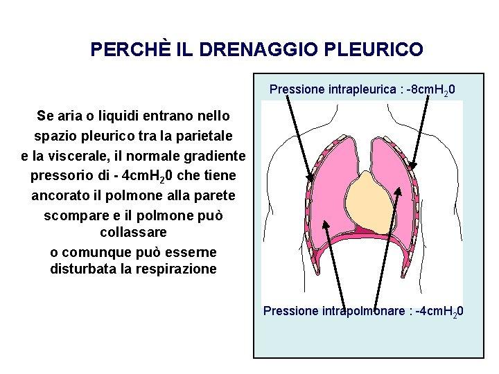 PERCHÈ IL DRENAGGIO PLEURICO Pressione intrapleurica : -8 cm. H 20 Se aria o