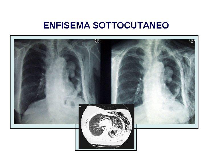 ENFISEMA SOTTOCUTANEO