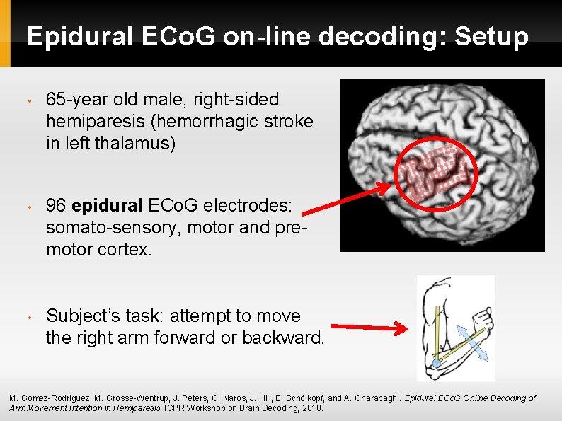 Epidural ECo. G on-line decoding: Setup • 65 -year old male, right-sided hemiparesis (hemorrhagic