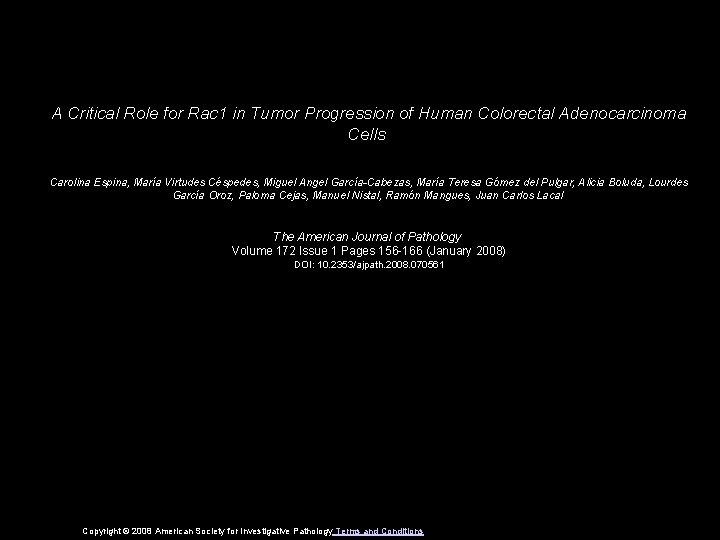 A Critical Role for Rac 1 in Tumor Progression of Human Colorectal Adenocarcinoma Cells