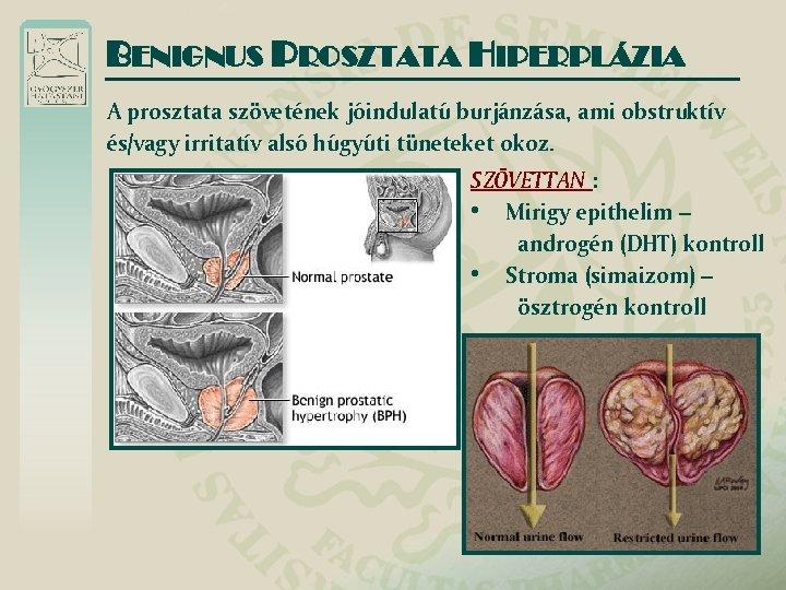 Hipplázia prosztata méretei