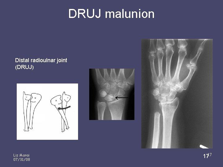 DRUJ malunion Distal radioulnar joint (DRUJ) Liz Marai 07/31/08 1717