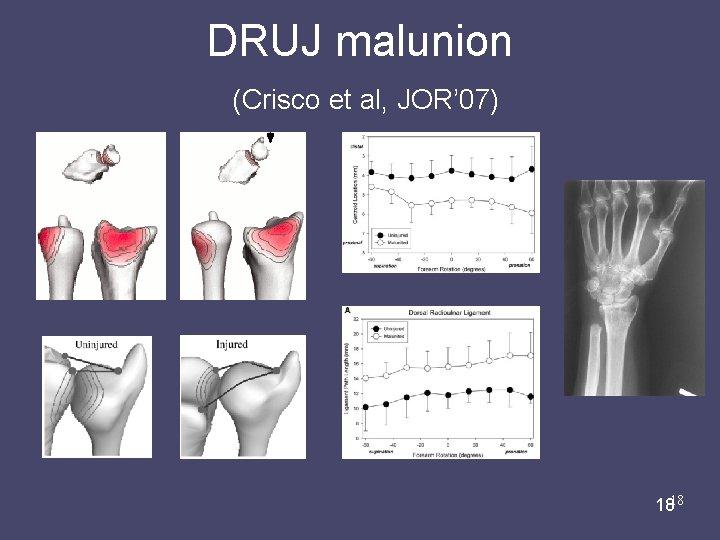 DRUJ malunion (Crisco et al, JOR' 07) Liz Marai 07/31/08 1818