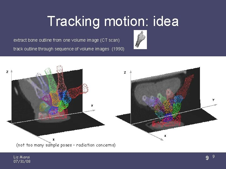 Tracking motion: idea extract bone outline from one volume image (CT scan) track outline