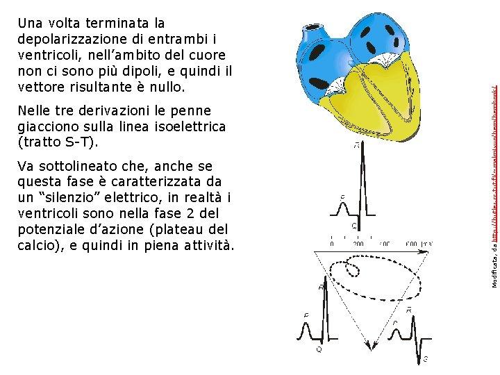 Nelle tre derivazioni le penne giacciono sulla linea isoelettrica (tratto S-T). Va sottolineato che,