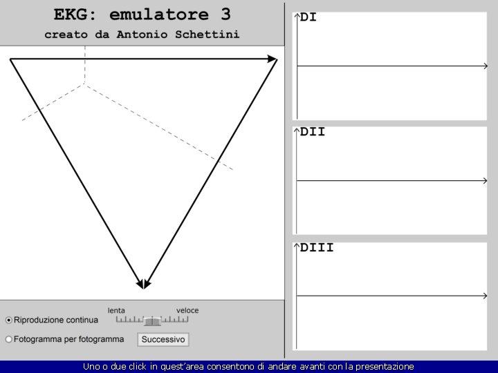 Emulatore 3 Le derivazioni bipolari dagli arti in un cuore normale Uno o due