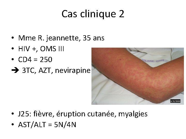 Cas clinique 2 • Mme R. jeannette, 35 ans • HIV +, OMS III