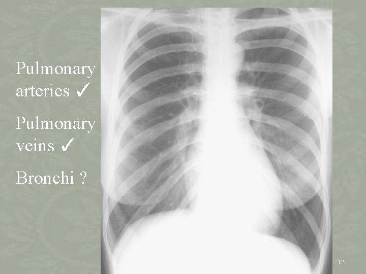 Pulmonary arteries ✓ Pulmonary veins ✓ Bronchi ? 12