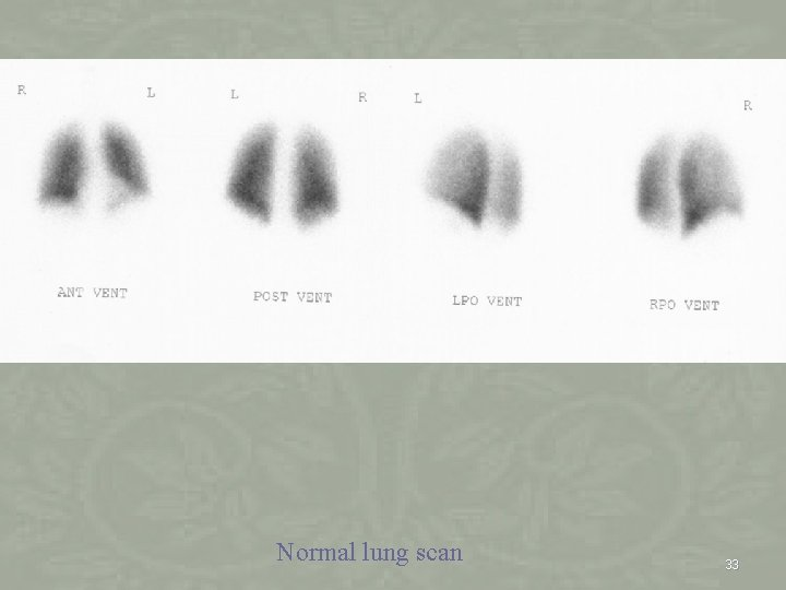 Normal lung scan 33