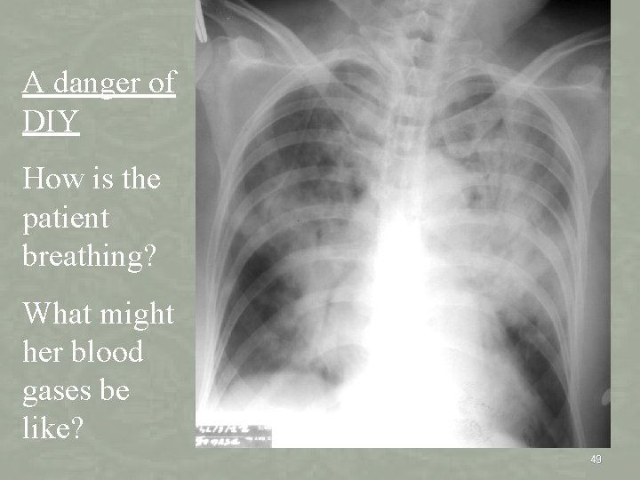 Lung imaging A danger of DIY How is the patient breathing? What might her