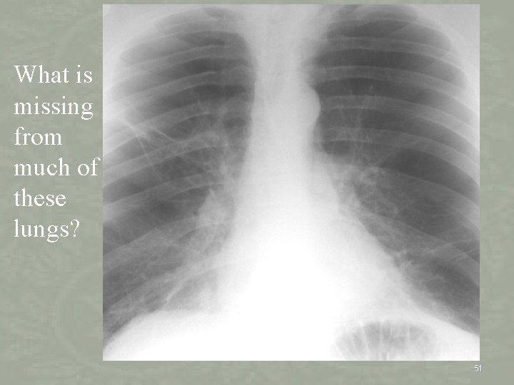 What is missing from much of these lungs? 51
