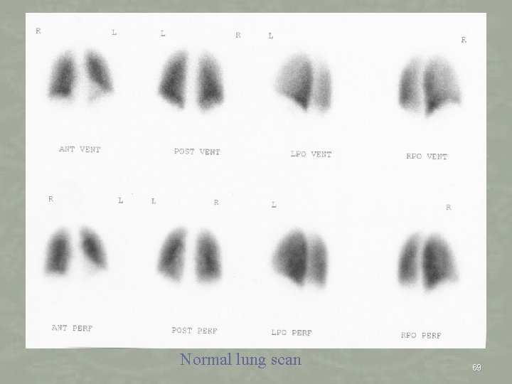 Normal lung scan 69
