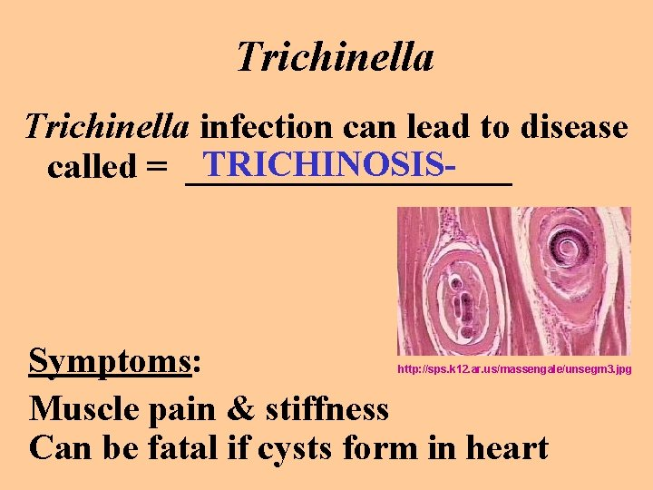 Trichinella infection can lead to disease TRICHINOSIScalled = _________ Symptoms: Muscle pain & stiffness
