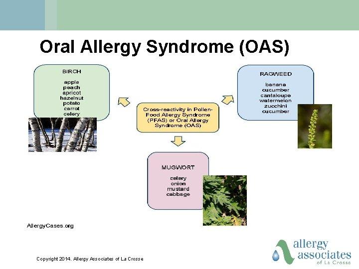 Oral Allergy Syndrome (OAS) Copyright 2014. Allergy Associates of La Crosse