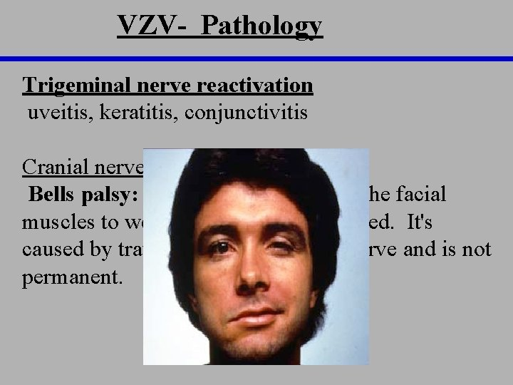 VZV- Pathology Trigeminal nerve reactivation uveitis, keratitis, conjunctivitis Cranial nerve reactivation Bells palsy: a