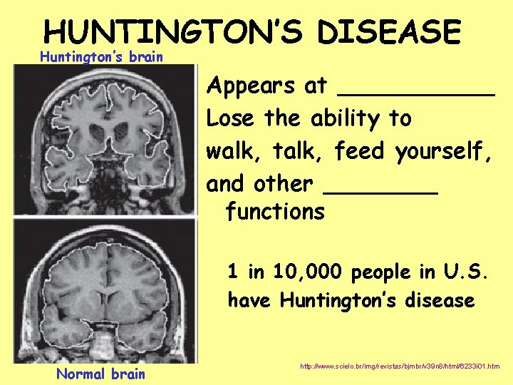 HUNTINGTON'S DISEASE Huntington's brain Appears at ______ Lose the ability to walk, talk, feed