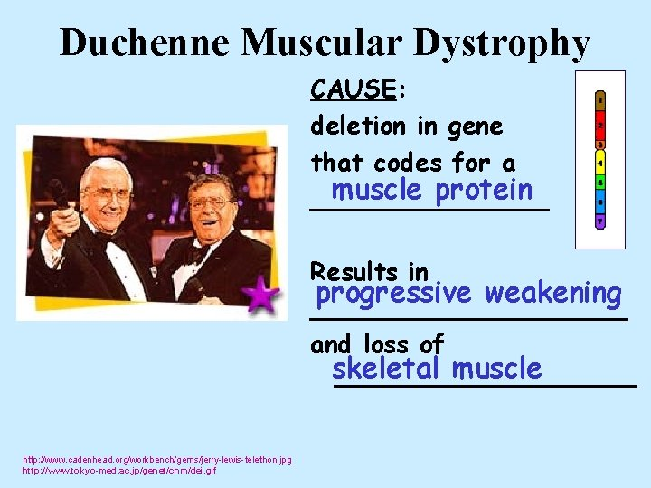 Duchenne Muscular Dystrophy CAUSE: deletion in gene that codes for a muscle protein ________