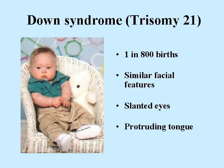 Down syndrome (Trisomy 21) • 1 in 800 births • Similar facial features •
