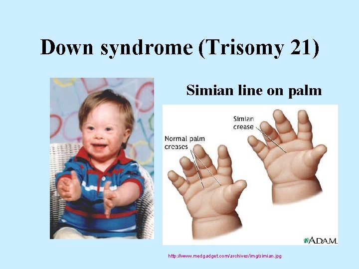 Down syndrome (Trisomy 21) Simian line on palm http: //www. medgadget. com/archives/img/simian. jpg