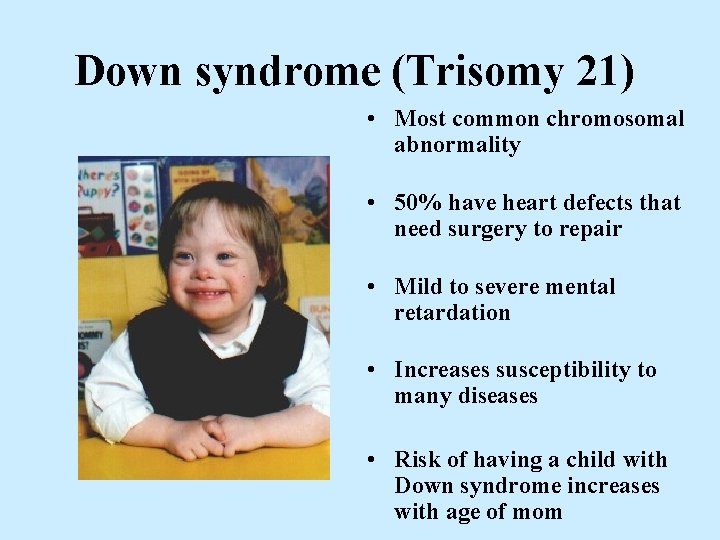 Down syndrome (Trisomy 21) • Most common chromosomal abnormality • 50% have heart defects