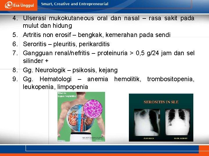 4. Ulserasi mukokutaneous oral dan nasal – rasa sakit pada mulut dan hidung 5.