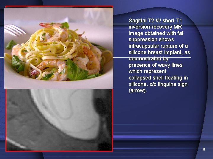 Sagittal T 2 -W short-T 1 inversion-recovery MR image obtained with fat suppression shows