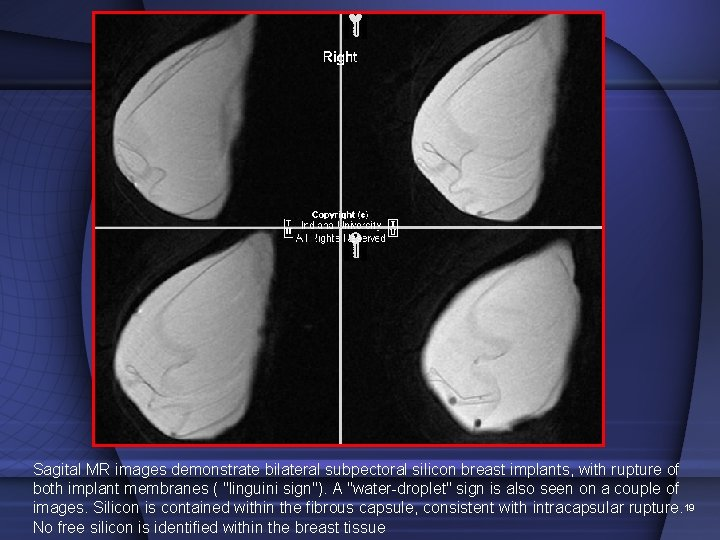 Sagital MR images demonstrate bilateral subpectoral silicon breast implants, with rupture of both implant